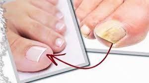 Fresh fingers - forum - criticas- preço