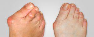 sandálias que vão valorizar a beleza nos pés e posso mostrá-los o sem vergonha graças ao Hallu Forte.