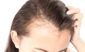 Hair 3.0 - onde comprar - Encomendar - Funciona