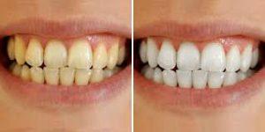 Snowhite Teeth Whitening - clareamento dos dentes - pomada - preço - farmacia