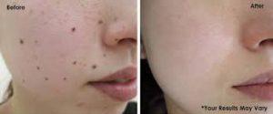 DermaCorrect - pele saudável - preço - como usar - efeitos secundarios