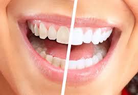 Snowhite Teeth Whitening - clareamento dos dentes - preço - como usar - efeitos secundarios
